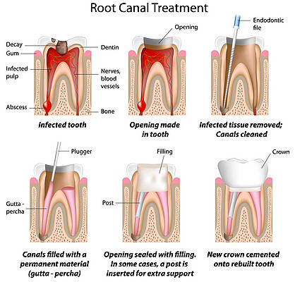 Root Canal Therapy2