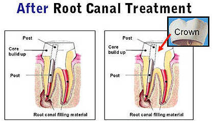 Root Canal Therapy3