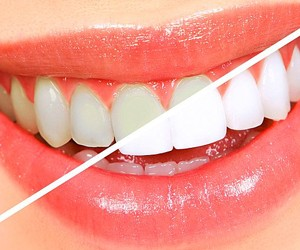 PROFESSIONAL WHITENING