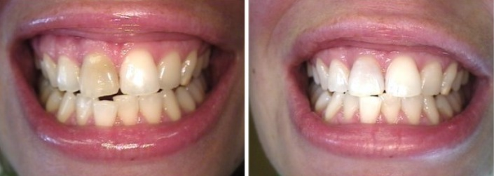 Zaki Dental-Root Canal- Before and After