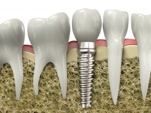 Dental Implant Shown